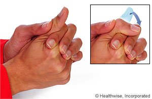 Picture of the thumb IP flexion exercise