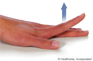 Picture of how to do finger extension exercise
