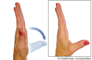 Picture of thumb abduction/adduction exercise