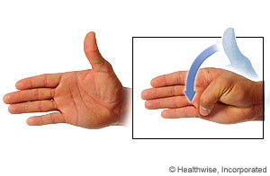 Picture of thumb flexion/extension exercise