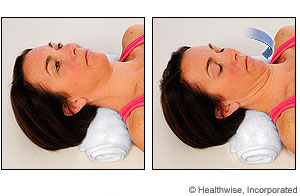 Photo of chin tuck exercise