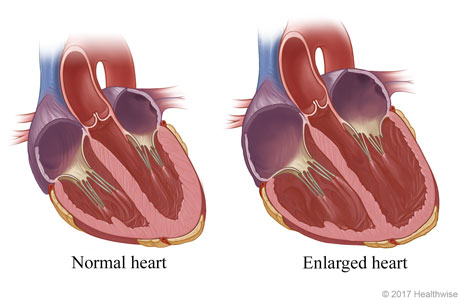 Cross section of a normal heart and a heart with enlarged chanbers