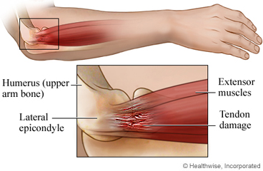 Tennis elbow anatomy: side view