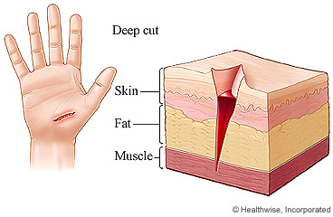 Deep cut through the layers of the hand