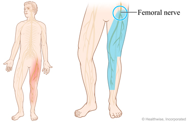 Picture showing location of femoral nerve
