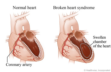 A normal heart showing a coronary artery and a normal chamber, and a heart with broken heart syndrome showing a swollen chamber