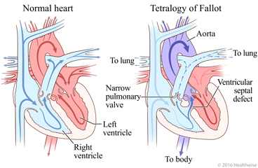 Normal heart and heart showing the four problems of tetralogy of Fallot and change in blood flow