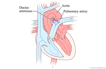 Heart showing patent ductus arteriosus and change in blood flow