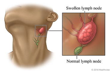 Location of lymph nodes in the neck with close up of swollen lymph node and normal lymph node