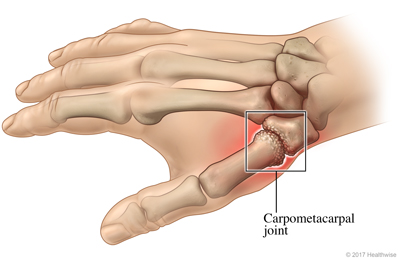 Skeletal view of arthritis in the carpometacarpal joint