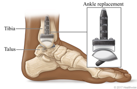 Lower leg and foot, showing tibia, talus, and artificial ankle replacement.