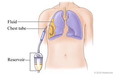 Fluid in lungs with chest tube and reservoir for drainage