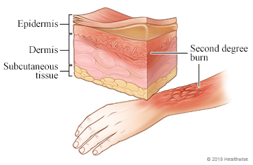 Picture of a second-degree burn on the arm