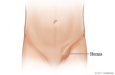 Location of an inguinal hernia