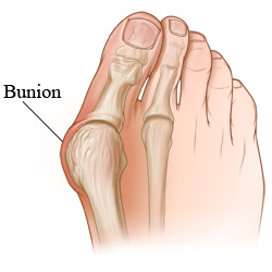 Skeletal view of a bunion