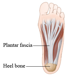 Picture of the bottom of the foot and the plantar fascia