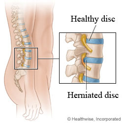 A healthy disc and a herniated disc