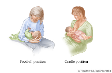 Breastfeeding in the football and cradle positions