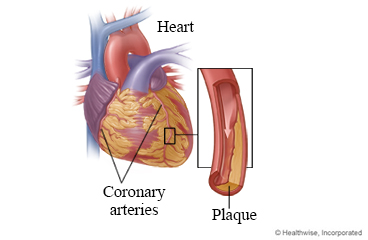 Coronary arteries and plaque in an artery
