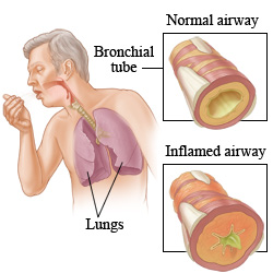 Picture of how asthma affects the airways of the lungs