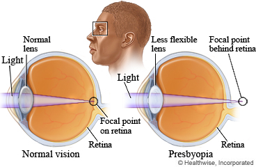 Eyes showing normal vision and presbyopia
