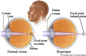 Picture of eyes showing normal vision and farsightedness