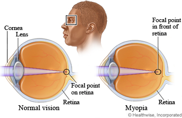 Eyes with normal sight and nearsightedness