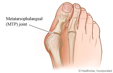 A foot with a bunion at the MTP joint