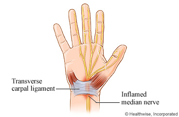 The hand's nerves, tendons, and carpal tunnel syndrome