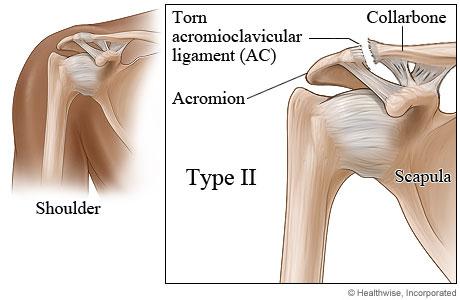 Type II Shoulder Separation