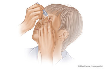 Putting in eyedrops