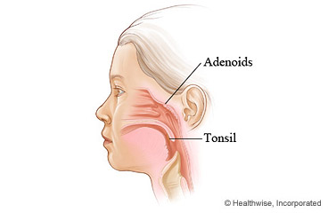 Location of adenoids and tonsils