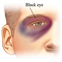 Picture of a black eye