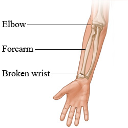 The arm bones and a broken wrist