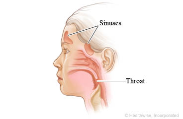Sinuses and throat in a child