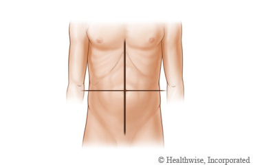 Picture of the four quadrants of the abdomen