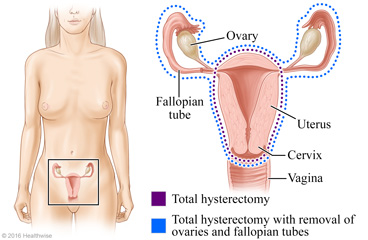 Vaginal hysterectomy pics