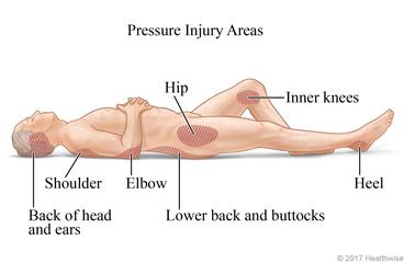 pressure sore images
