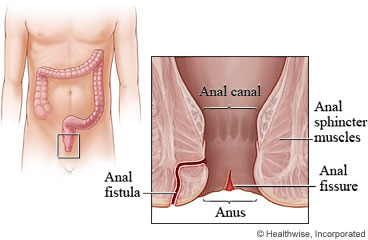 how to tell if you tear your anus inside