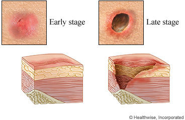 stage 4 pressure ulcer picture #10