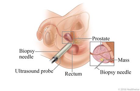 site de conversa massagem prostata