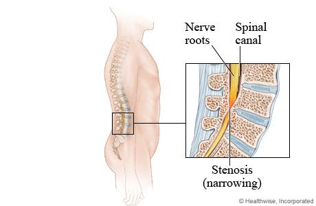 Spinal Stenosis Lumbar