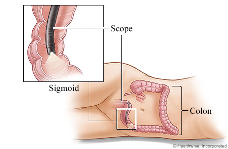 Sigmoidoscopy Step 2
